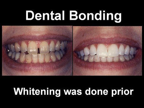 Dental Bonding 4