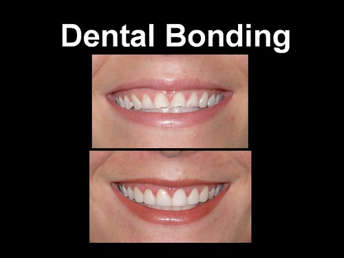 Dental Bonding 9.3