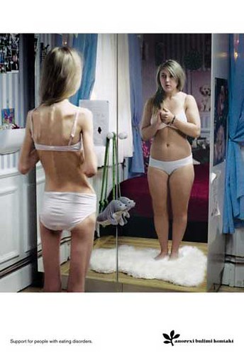 Anorexi Bulimi Kontakt