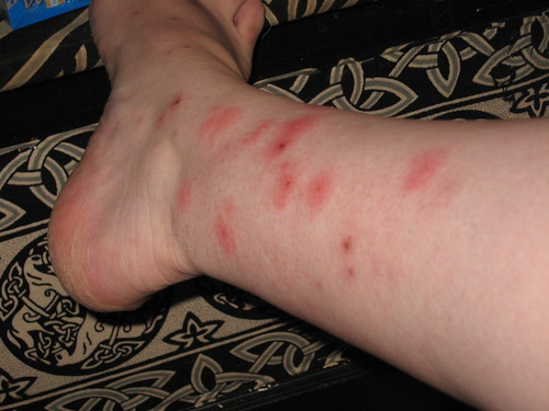 Bed Bug Bites Photos And Information