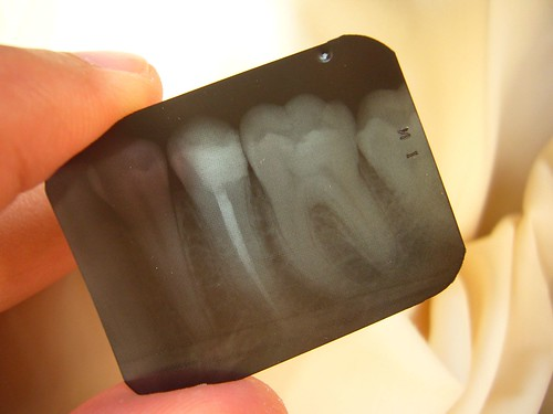 tooth and xray