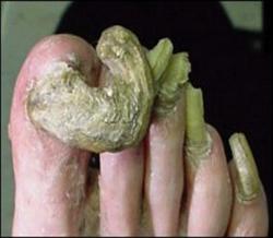 Long ugly toenails