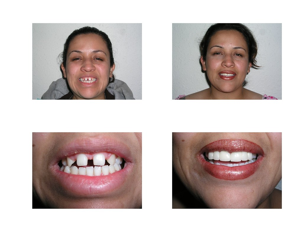 Andres Dental's Radio Winners Before and After Pictures