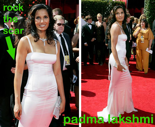 padma lakshmi scar. Padma Lakshmi arrives at the