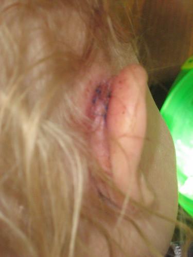 Stitches!