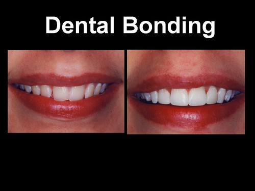 Dental Bonding 3