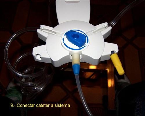 Conectar catéter a sistema