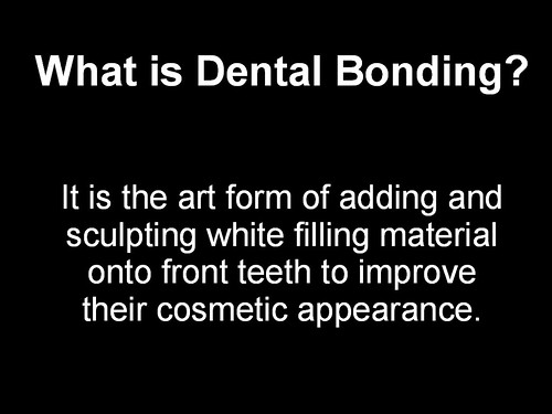 Dental Bonding 1