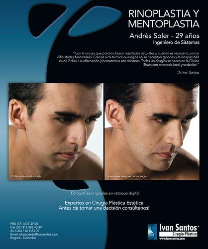 Rinoplastia/Mentoplastia - Ivan Santos Cirugía Plastica