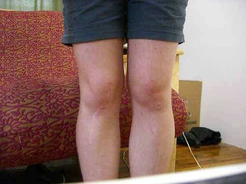 My Swollen Knee