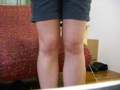 My Swollen Knee