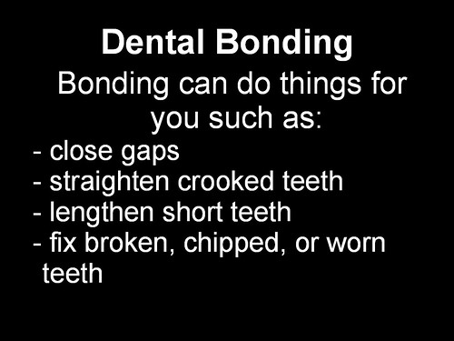 Dental Bonding 2