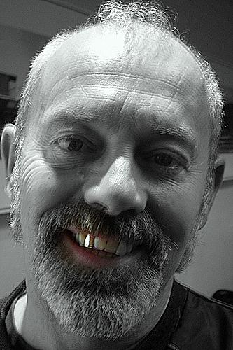Keith Allen