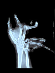 Hand trauma (Surfactant) Tags: hand explosion xray explosives radiology trauma radiograph copyfromoriginalxray
