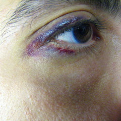Bruised eye
