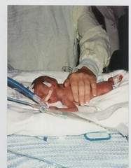 preemie on respirator in 1994