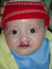 Baby with Cleft Receives Free Surgery (ReSurge International) Tags: baby ecuador cleft w07 2007 interplast azogues michellespring
