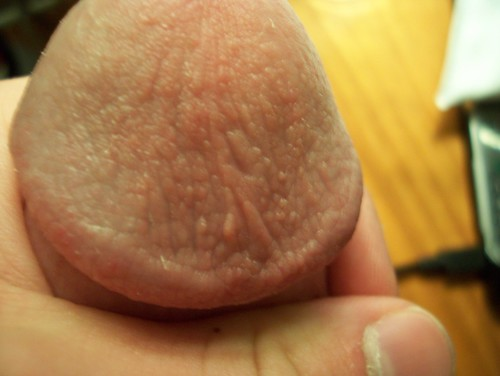 discolored hard tip of penis