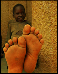 Feet (LindsayStark) Tags: africa travel war conflict uganda humanrights humanitarian displaced idpcamp refugeecamp idps idp humanitarianaid emergencyrelief idpcamps waraffected