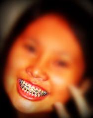braces on