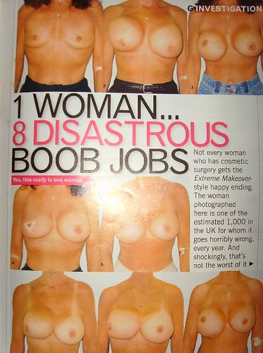Worst boob jobs ever can not