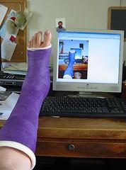 Dj Vu (franziskas garten) Tags: foot cast ankle fuss gips