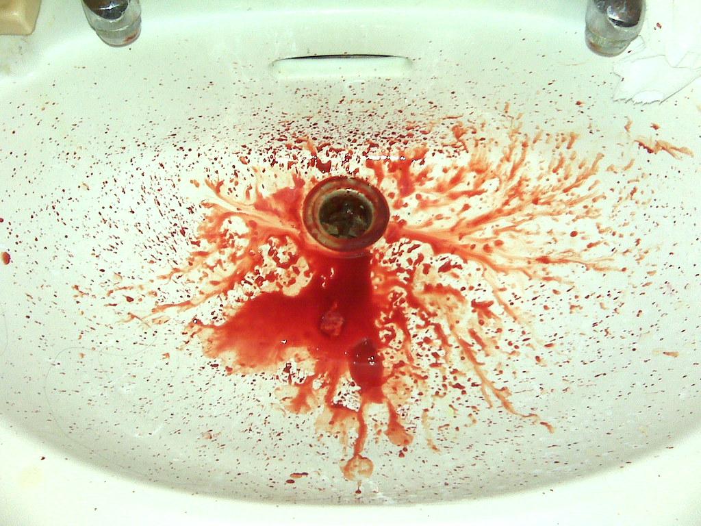 Если рвота с кровью