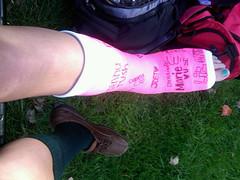 eDJfMmZmMjFkOS5qcGc (chilltown1) Tags: toes cast ankle
