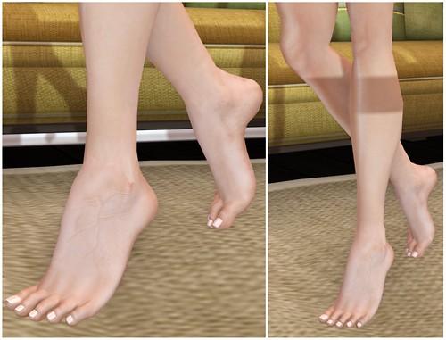 SLink feet