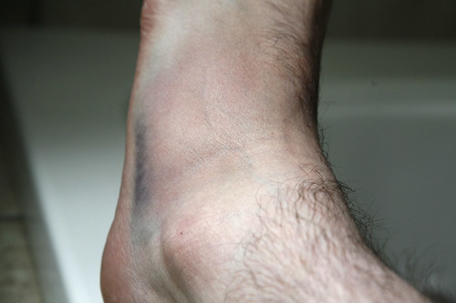 club_foot.jpg