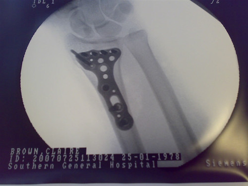 Claire's Metal Plate