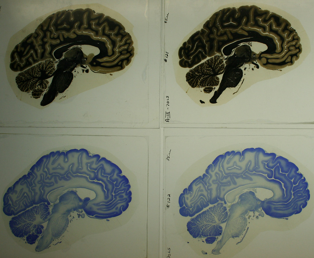 Fancy Brain Slices Anatomy Component - Human Anatomy Images ...