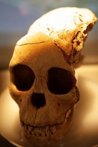 various bones 5