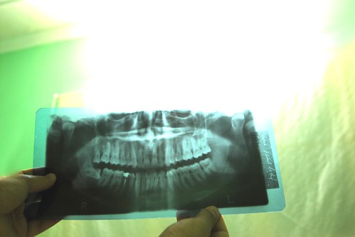 cheese tooth weekend teeth xray jaws wisdom cheeze
