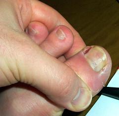 funky toe