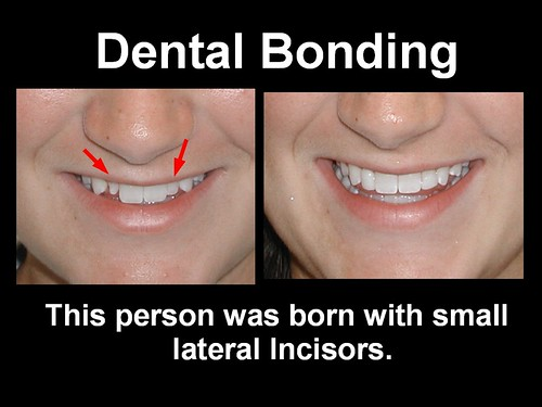 This person couldn't stop smiling after this was done. Dental Bonding 9