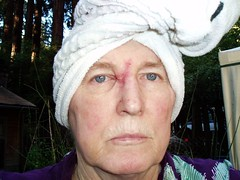 basal cell carcinoma removal scar