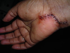 Right before stitches got removed (javaturtle) Tags: pain hurt blood hand surgery gross stitches damage nerve wrist healing recovery nikoncoolpixl2