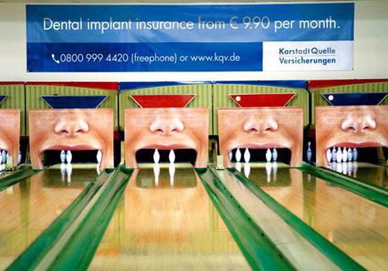 publicidad de implantes dentales