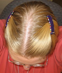 Top View of Barrettes