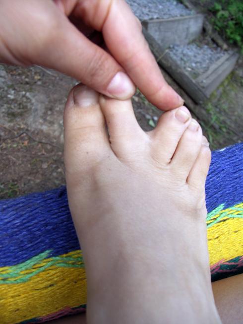 i have webbed toes. sorta