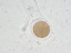 Blastocladiella emersonii (xerantheum) Tags: fungi emersonii chytrid blastocladiella chytridiomycota blastocladiomycota