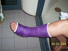 l_2bb49baebef44da186d9ebcdb53abeb6 (chilltown1) Tags: toes cast ankle