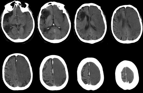 infarto cerebral circulación anterior