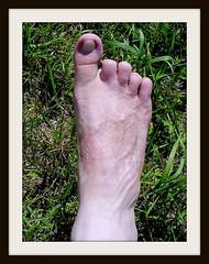 Toe Amputee (weaponeer) Tags: amputee amputation toeamputation toes foot amp stump cutofftoes stumpy missingtoes cooltoes scar scars finger fingerstump stumps cutofffingers choppedofffingers amputations messedup nub nubs