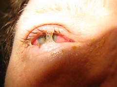 conjunctivitis (Bill(iudshi8uf)) Tags: eye pinkeye