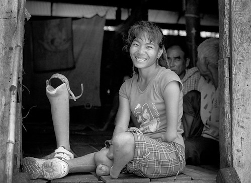 A smiling Vietnamese woman pictured in a seated position in a doorway with her prosthetic leg standing up next to her. Her right arm is amputated at the hand and her left arm is amputated at the elbow. Behind her, two older adults are seated.