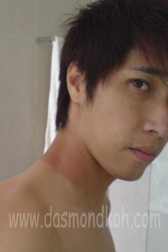 tp sunburn