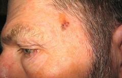 this is melanoma
