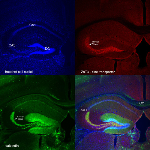 confocal image calbindin and zinc transporter expression in mouse brain